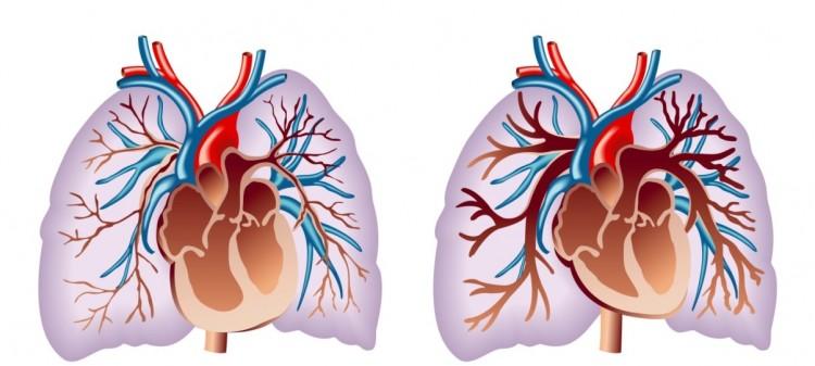 Pulmão doente (esq) e pulmão saudável (dir). Na hipertensão pulmonar a obstrução das artérias (em vermelho) faz o lado direito do coração (lado esquerdo na figura) ficar hipertrofiado.