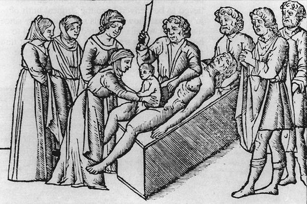 Ilustração de uma cesárea, com um bebê nascendo do ventre de uma mãe já morta